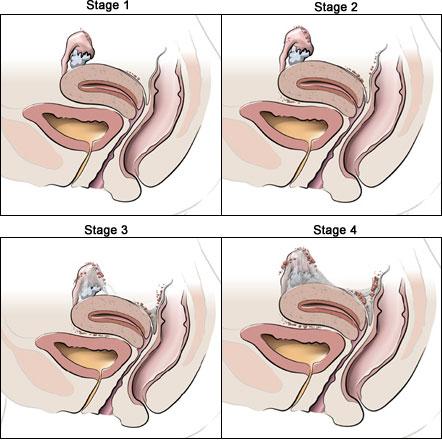 endometriosis-all-stages-en, Endometriosis Treatment Miami