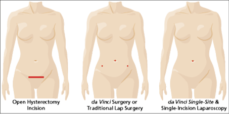 test-hysterectomy-incision-comparison-single-site, hysterectomy surgery options