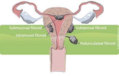 uterus-fibroid-types-en, hysterectomy surgery options